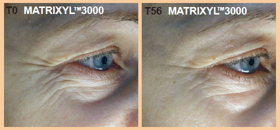 Matrixyl 3000 Before and after clinical trials results