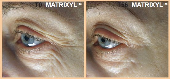 Matrixyl Before and after clinical trials results